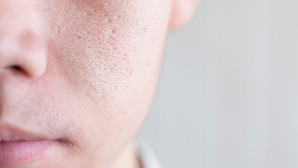 01-men-grooming-skin-pore-รูขุมขนกว้าง-jan20